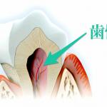 歯髄腔と天気の深い関係