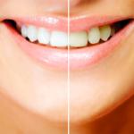 歯を白く見せる仕組み